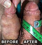 photo: Penis enlargement pics - penis enlargement before and after