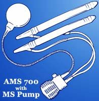 AMS 700 Inflatable Penile Prosthesis with MS Pump