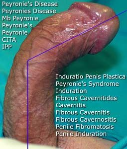 wife-loves-penis-surgery-before-and-after