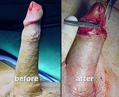 Operation for penis enlargement