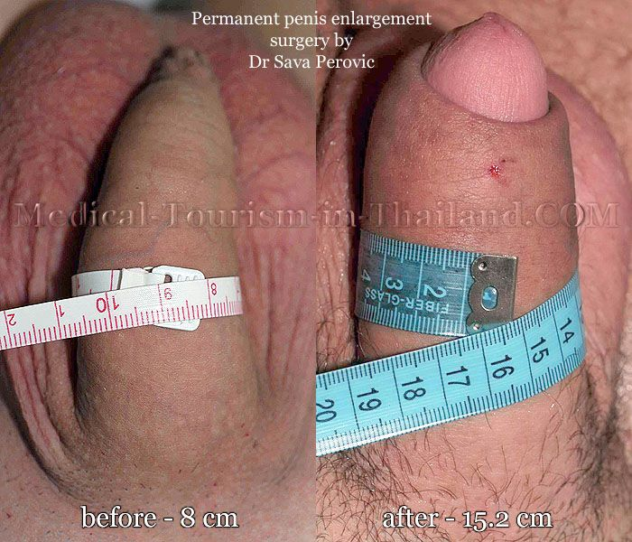 Methods and techniques of penis enlargement