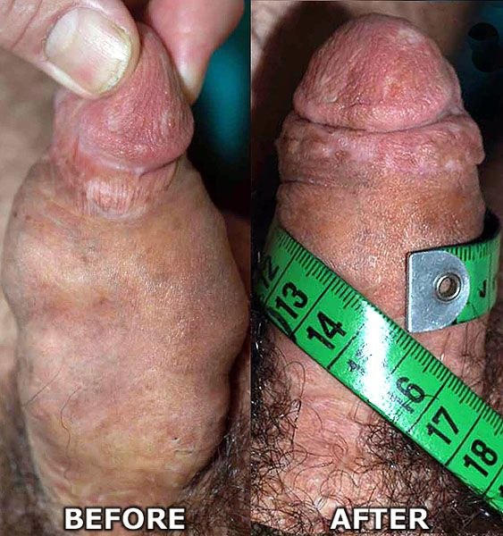 Penis Enlargment Results 90