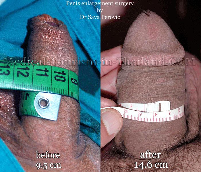 Bigger penis size penis enlargement surgery thailand penile enhancement bangkok